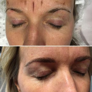 microblading-before-after-sq