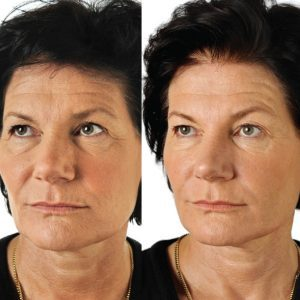 Before and After photo of the Restylane SkinBooster wrinkle treatment.