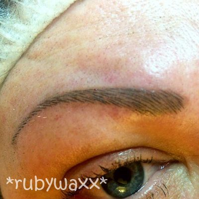 brow-reconstruction-after