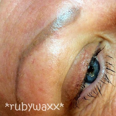 brow-reconstruction-before