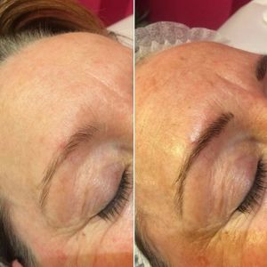 You too can have beautiful bold eyebrows with microblading.